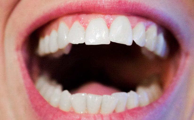 Nowoczesna technika stosowana w salonach stomatologii estetycznej zdoła sprawić, że odzyskamy śliczny uśmieszek.