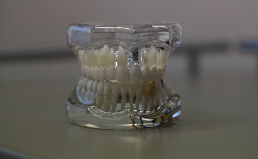Zła dieta żywienia się to większe niedobory w zębach oraz dodatkowo ich utratę